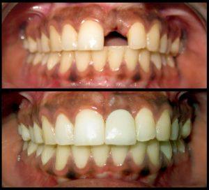 Price of dental implant